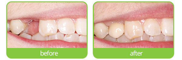 epping dental implants