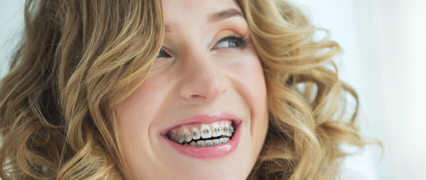 cost of braces epping